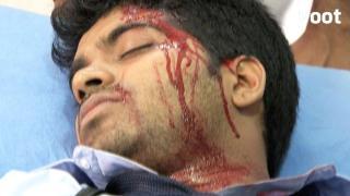Mukund is severely injured